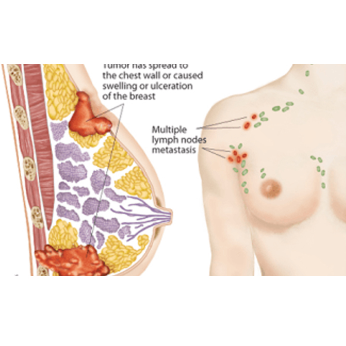 http://nutas.in/wp-content/uploads/2017/02/A-previous-breast-cancer.jpg
